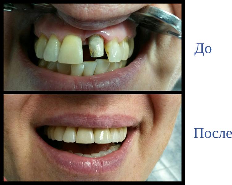 Цены на ортопедическую стоматологию