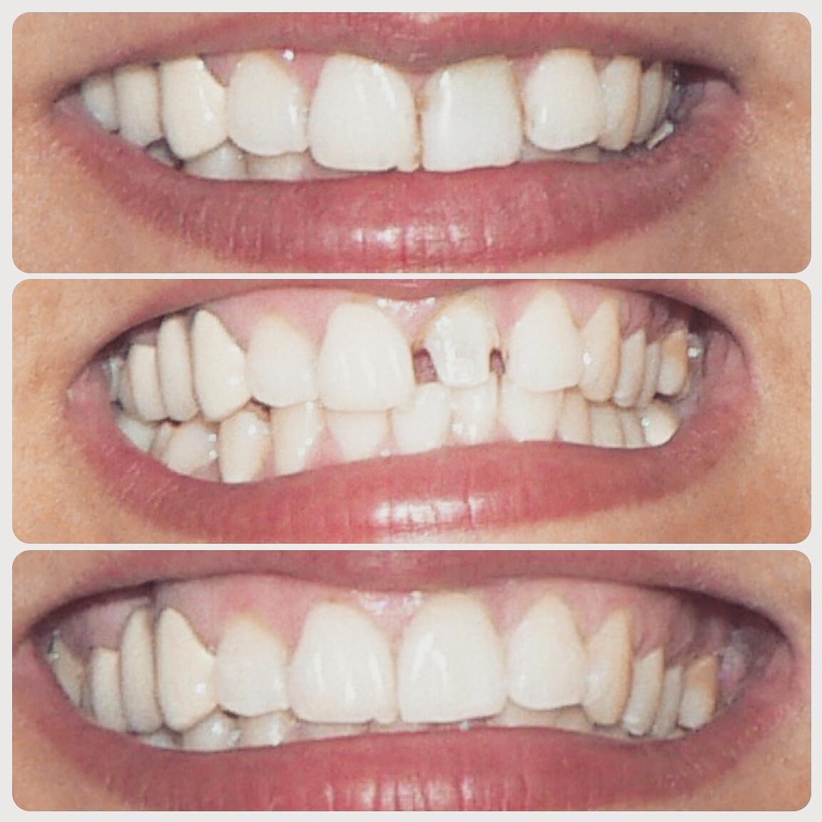 Ортопедическая стоматология в Москве