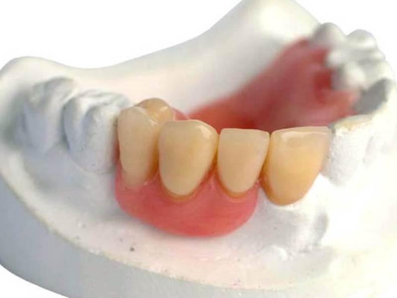 акриловый зубной протез фото отзывы шесть лет