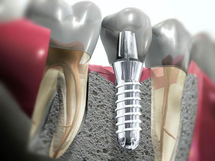 Купить аптеке отбеливания зубов