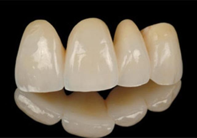 на несъемноепротезирование зубов