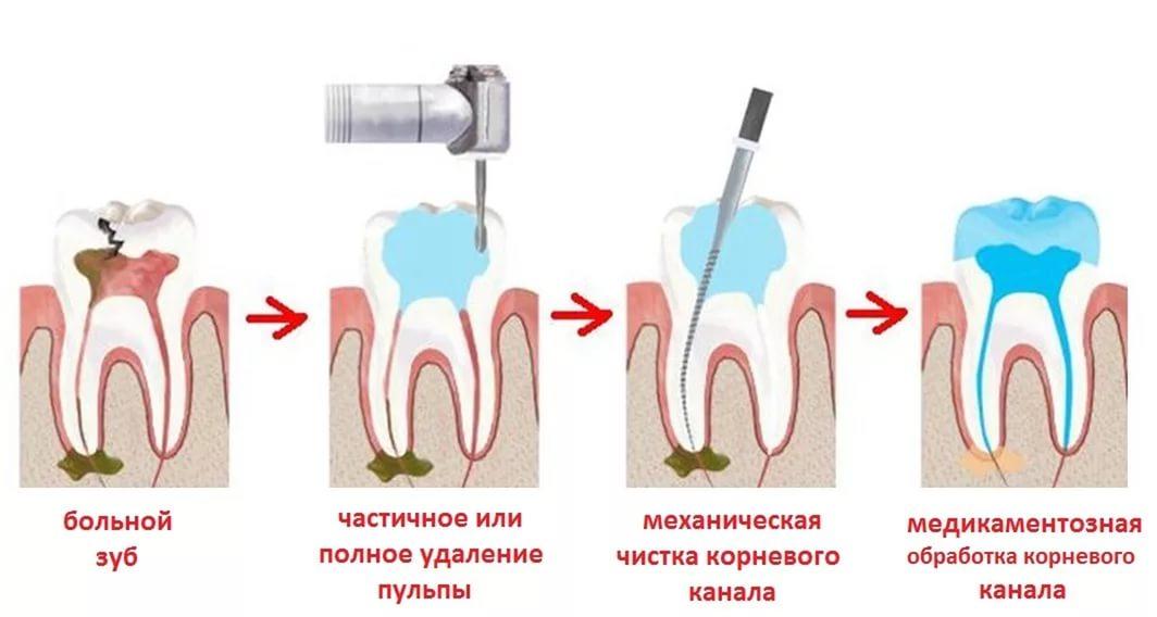 Дискомфорт у корня зуба