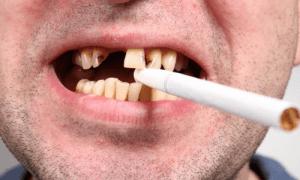 Влияние курения на здоровье зубов