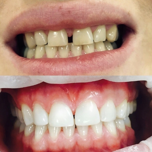 отбеливание зубов zoom в домашних условиях
