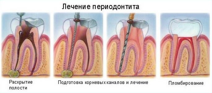 Лечение периодонтита в Реутове