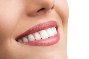 Современные зубные импланты
