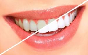 Отбеливание зубов Zoom 3 в Реутове
