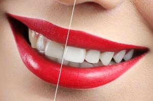 Отбеливание зубов ZOOM Реутов