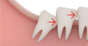 Показания к удалению зуба мудрости