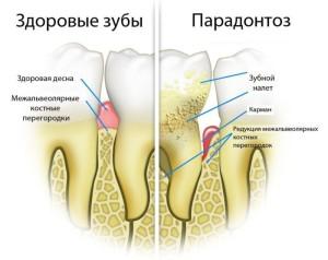 Лечение пародонтоза в Реутове и Москве