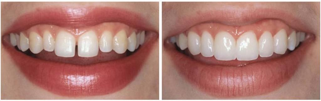 Эстетическая стоматология в клинике