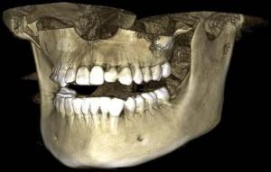 3D-снимок зубов
