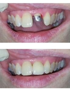 Безметалловые коронки на зуб Реутов