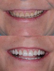 Безметалловые зубные коронки Реутов