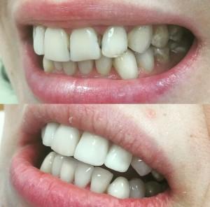 Эстетическая стоматология в Реутове