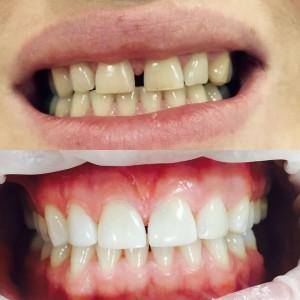 Эстетическая стоматология Реутов