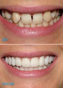 пример работы выполненной в стоматологической клинике Реутова Профи-Дент
