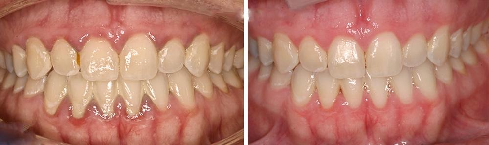 Примеры работ стоматологов Профи-Дент
