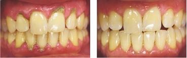 Пример выполнения услуг в стоматологии Профи-Дент
