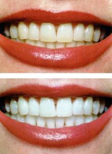 пример отбеливания зубов в Реутове Профи-Дент