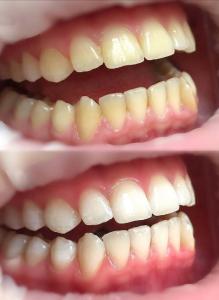 пример отбеливания зубов  Реутов Профи-Дент