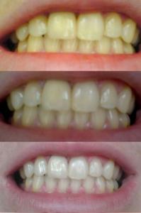Отбеливание зубов в Реутове Профи-Дент