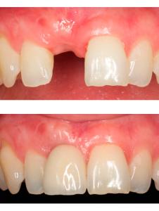 Имплантация зубов пример работы Реутов Москва