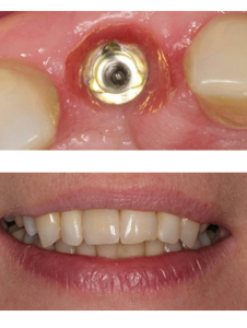 Импланты зубов пример работы Реутов Москва