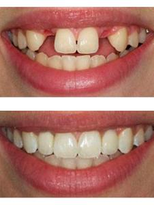 Импланты зубов В Реутове пример работы
