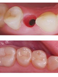 Импланты зубов В Реутове