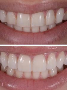 Люминиры на зубы Реутов