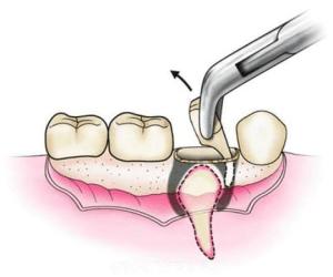Стоматологическая клиника Реутов Москва Восстановление улыбки