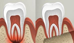 Стоматологическая клиника в Реутове: зубосохраняющие операции
