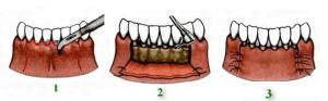 Восстановление зубов в Реутове