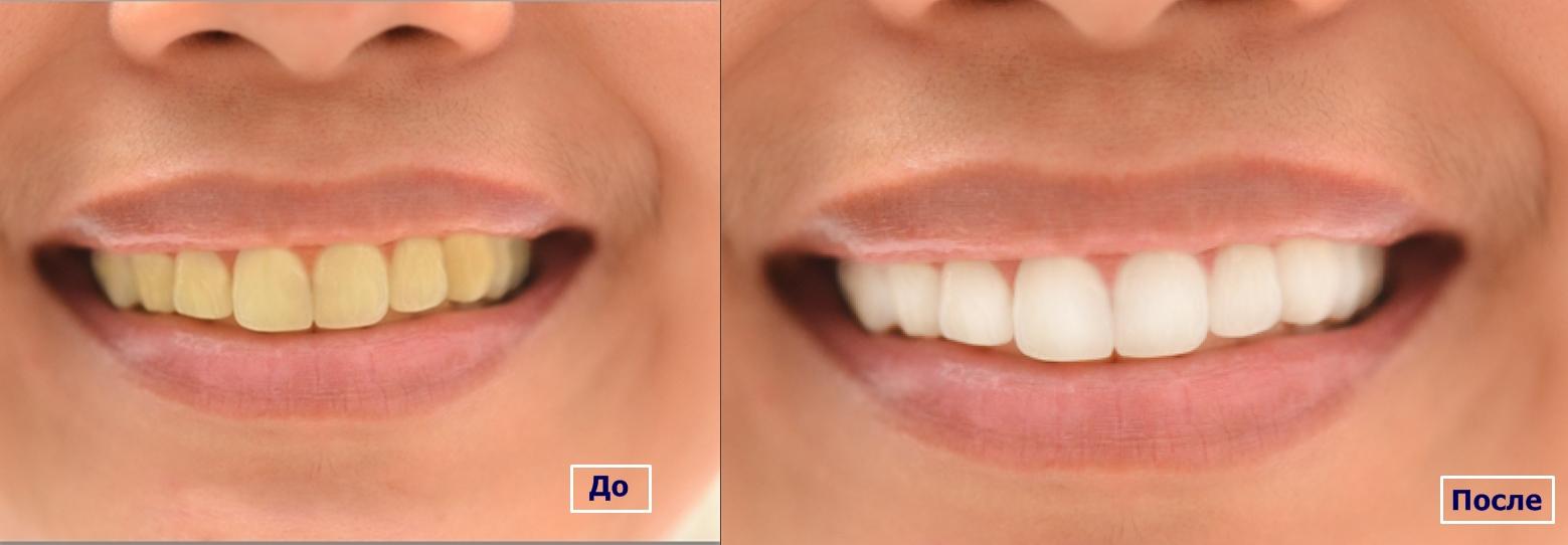 Цены на отбеливание зубов Zoom 3