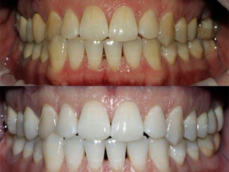 Отбеливание зубов Zoom 3 цены в Реутове