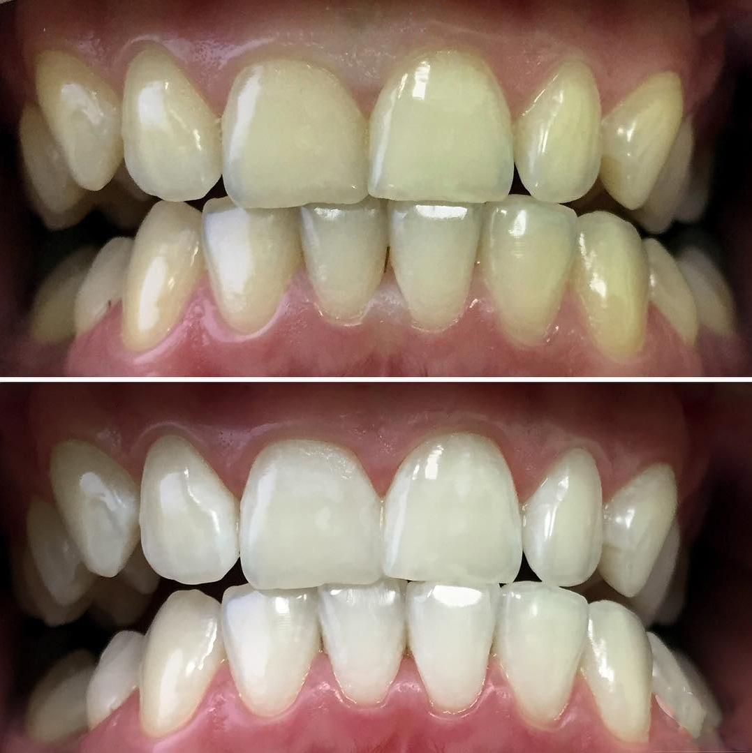 Профессиональное отбеливание зубов Zoom 3